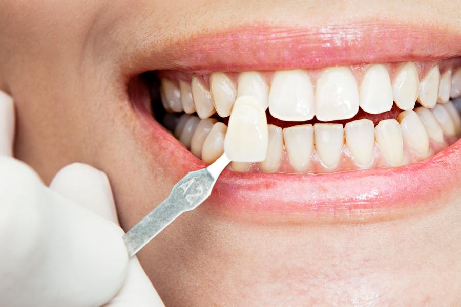 teeth whitening kitchener dentist kw dental clinic dr ghada